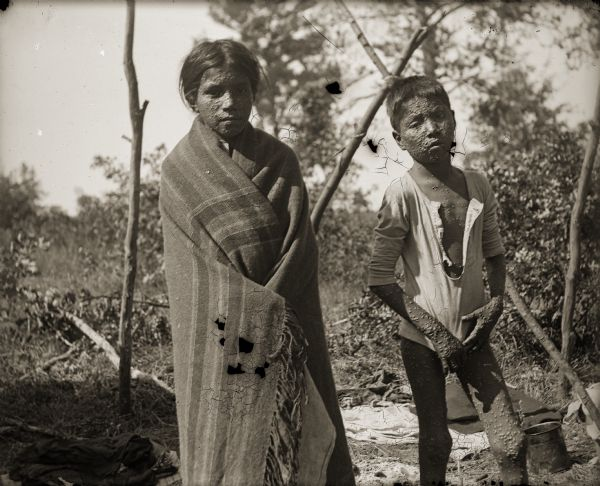 An unidentified young Ho-Chunk boy and girl with smallpox are standing outside of their home. The Ho-Chunk girl is wrapped in a shawl and is standing on the left, and the Ho-Chunk boy standing on the right is posing wearing only a shirt.