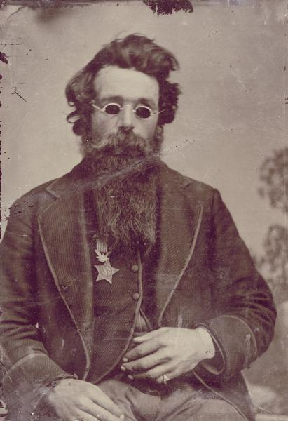 Francis Jefferson Coates of the 7th Wisconsin who earned the Medal of Honor for bravery at the Battle of Gettysburg. Sergeant Coates was so severely wounded during the battle that he lost the sight of both eyes. In this photograph, which dates from after the war, Coates is wearing his medal.