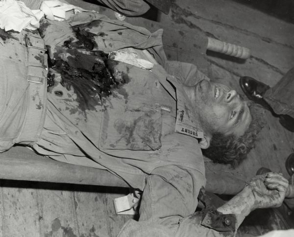 "Corporal William (Bill) Fenton lays badly wounded, waiting for medical treatment. There is a note on his shirt that reads ""urgent."" Fenton survived the injury."